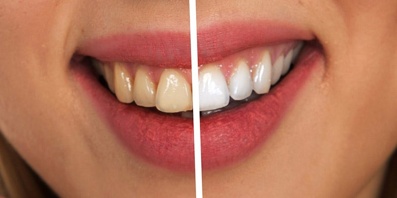 Why Are My Teeth Yellow When I Brush Them Everyday?